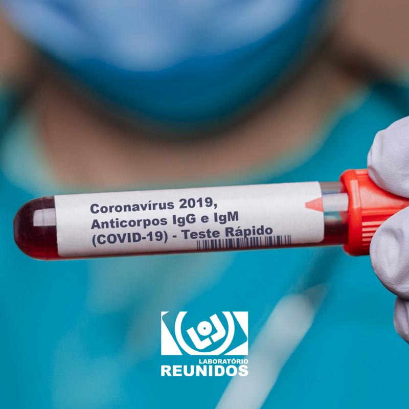 Coronavírus 2019, Anticorpos IgG e IgM (COVID-19) - Teste Rápido